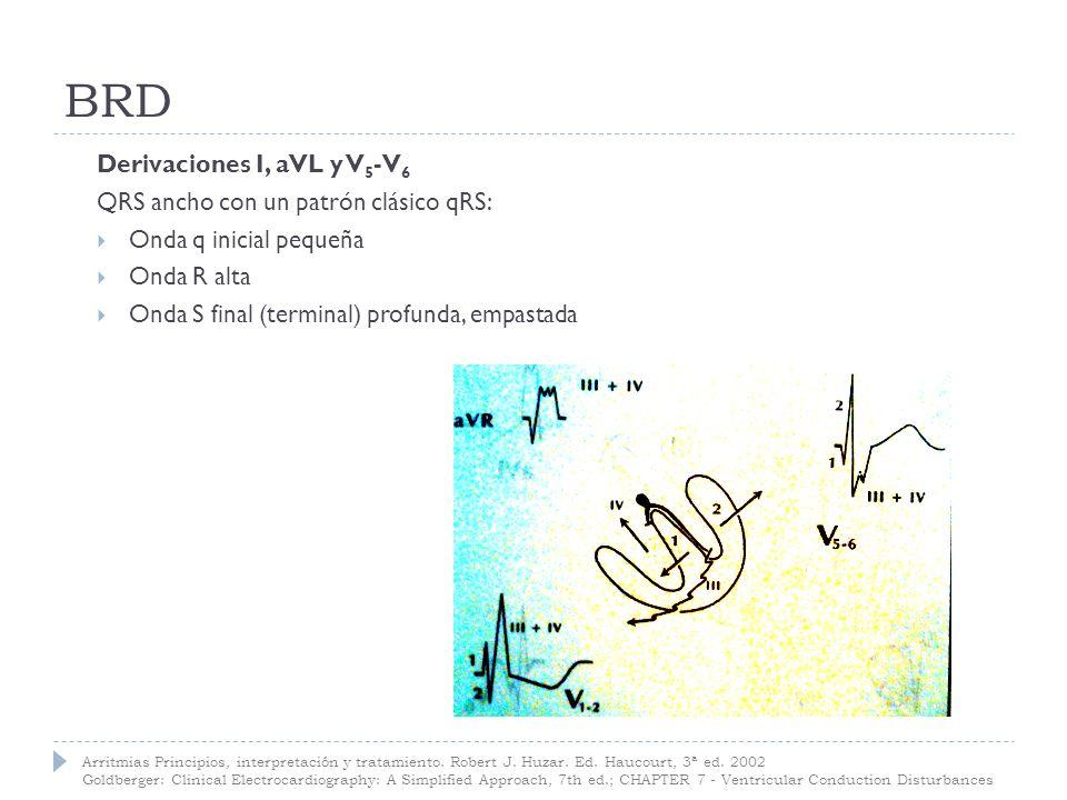 BRD Derivaciones I, aVL y V5-V6 QRS ancho con un patrón clásico qRS: