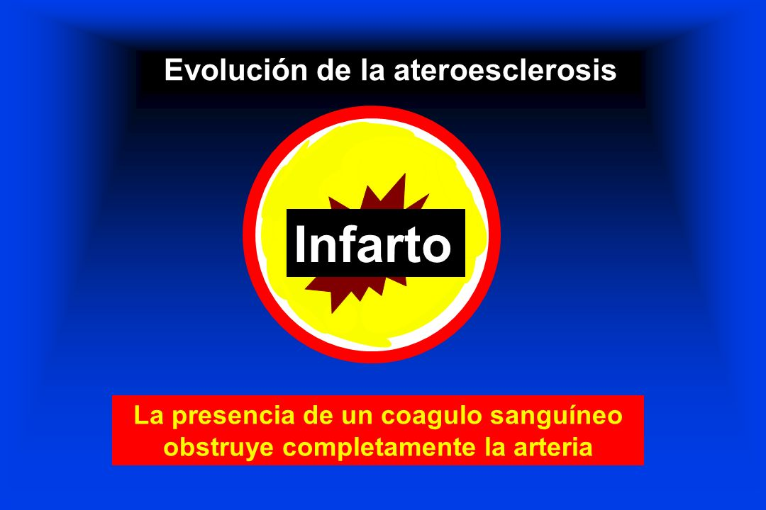 Evolución de la ateroesclerosis