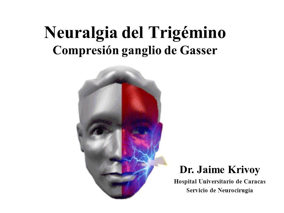Neuralgia del Trigémino Compresión ganglio de Gasser