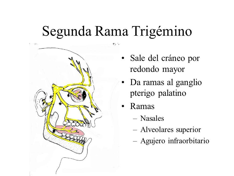 Segunda Rama Trigémino