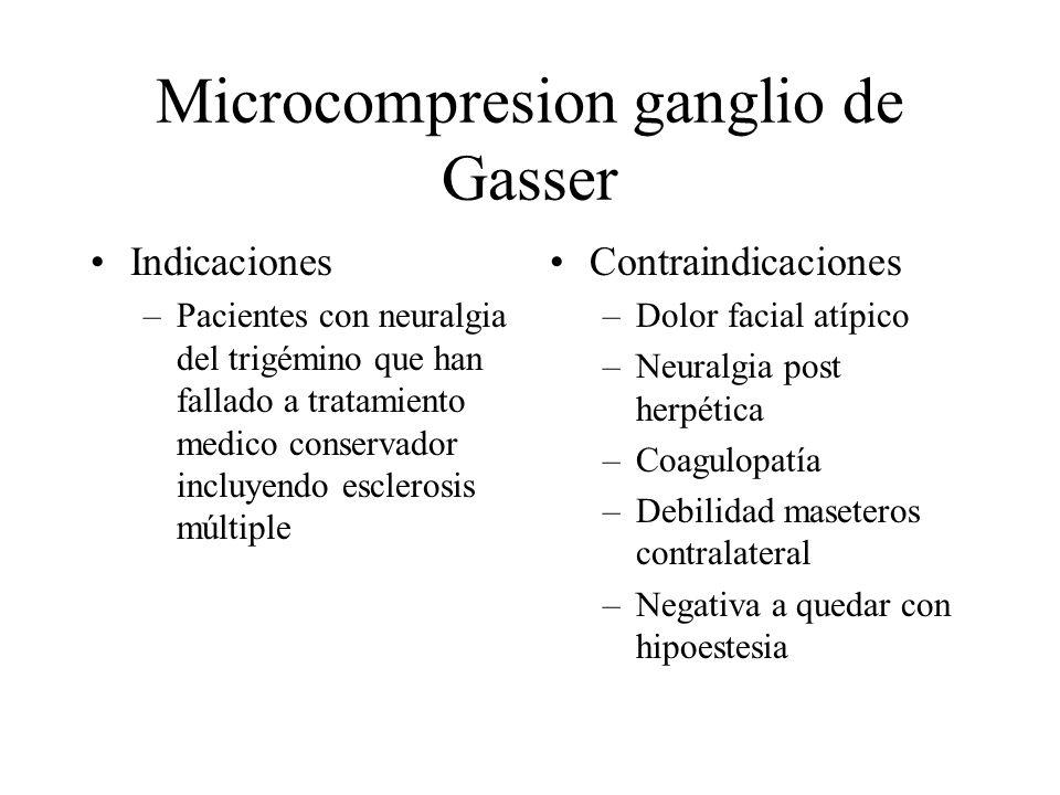 Microcompresion ganglio de Gasser