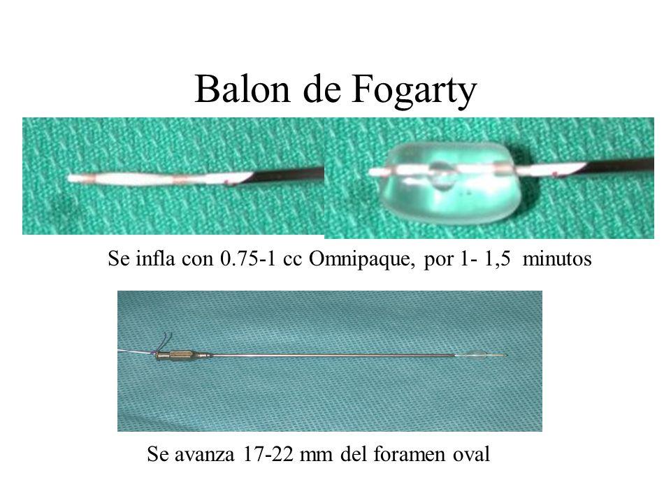 Balon de Fogarty Se infla con 0.75-1 cc Omnipaque, por 1- 1,5 minutos