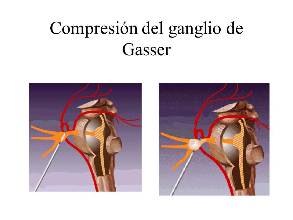 Compresión del ganglio de Gasser