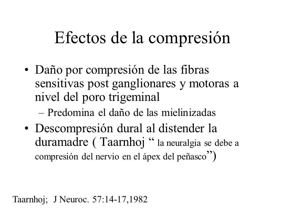 Efectos de la compresión