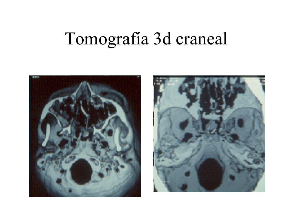 Tomografía 3d craneal