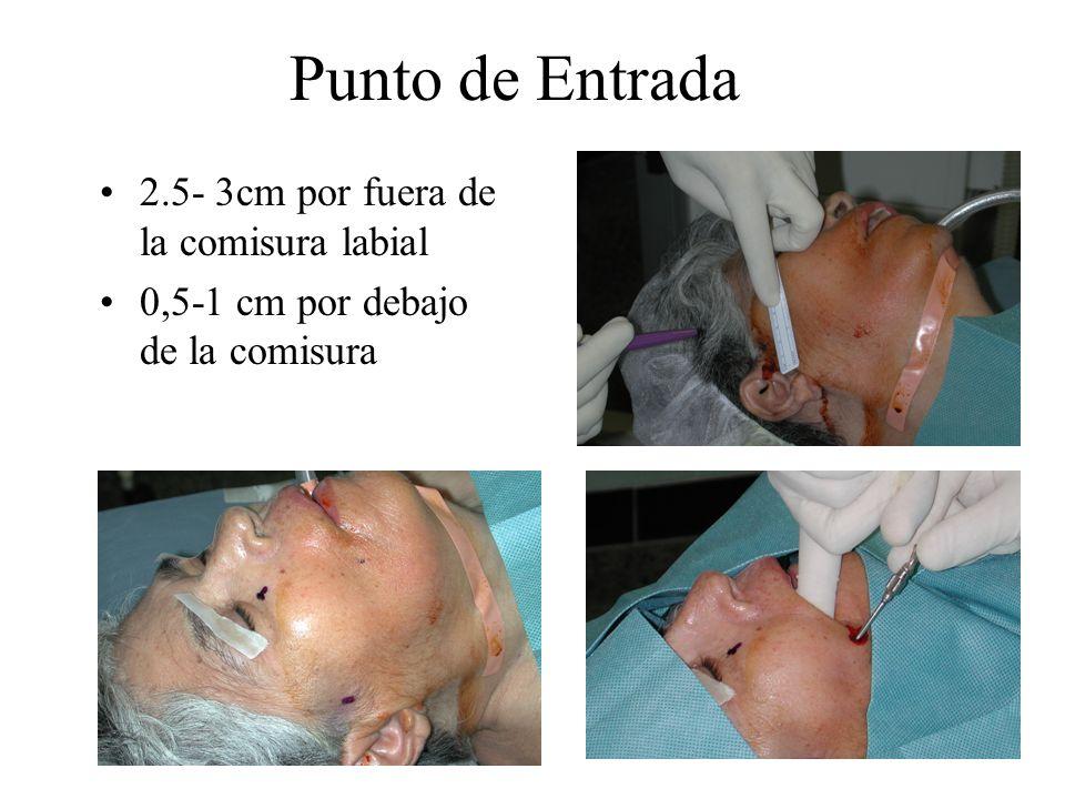 Punto de Entrada 2.5- 3cm por fuera de la comisura labial