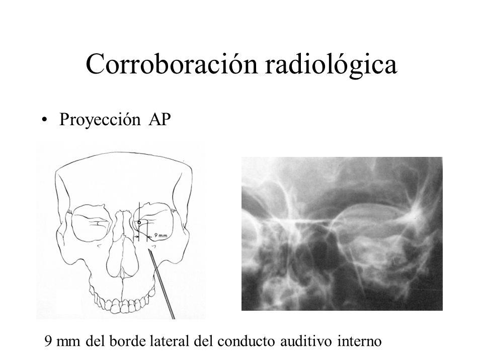 Corroboración radiológica