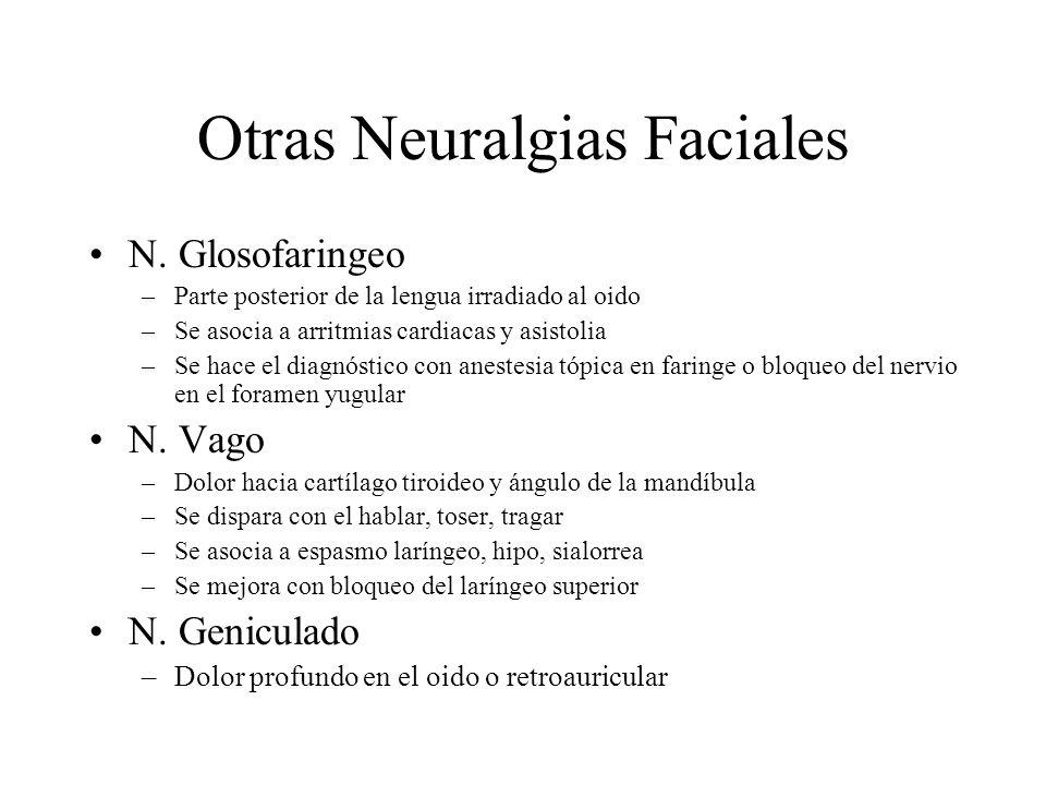 Otras Neuralgias Faciales