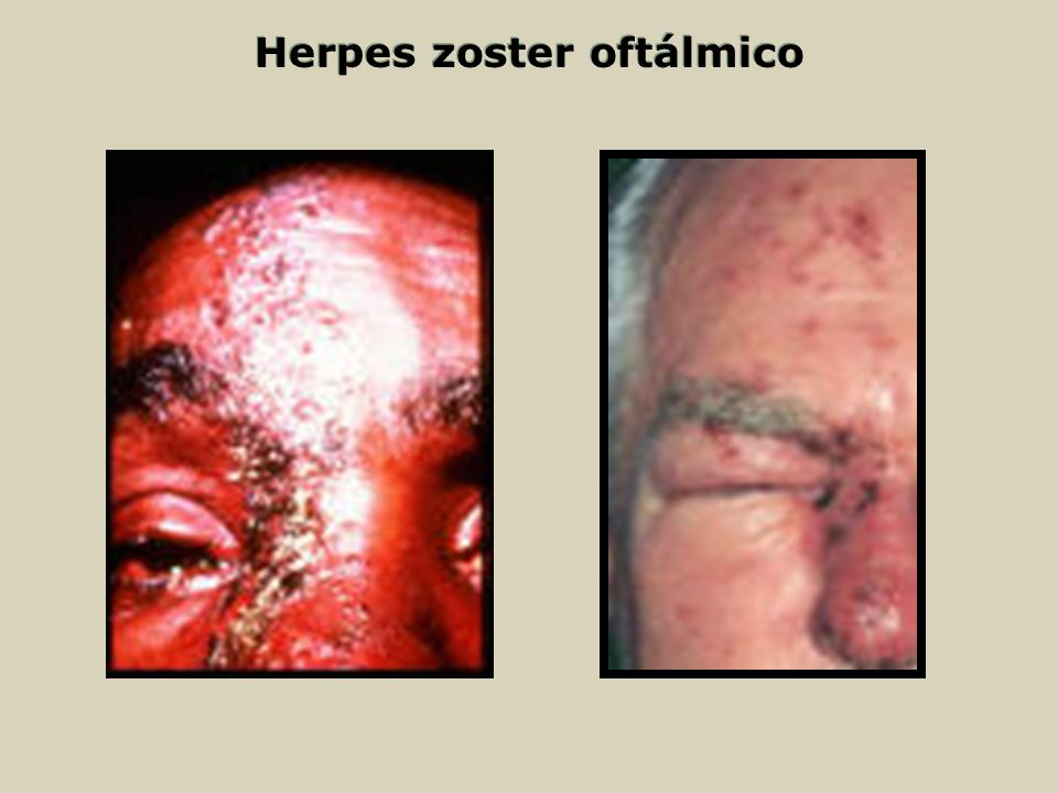 Herpes zoster oftálmico