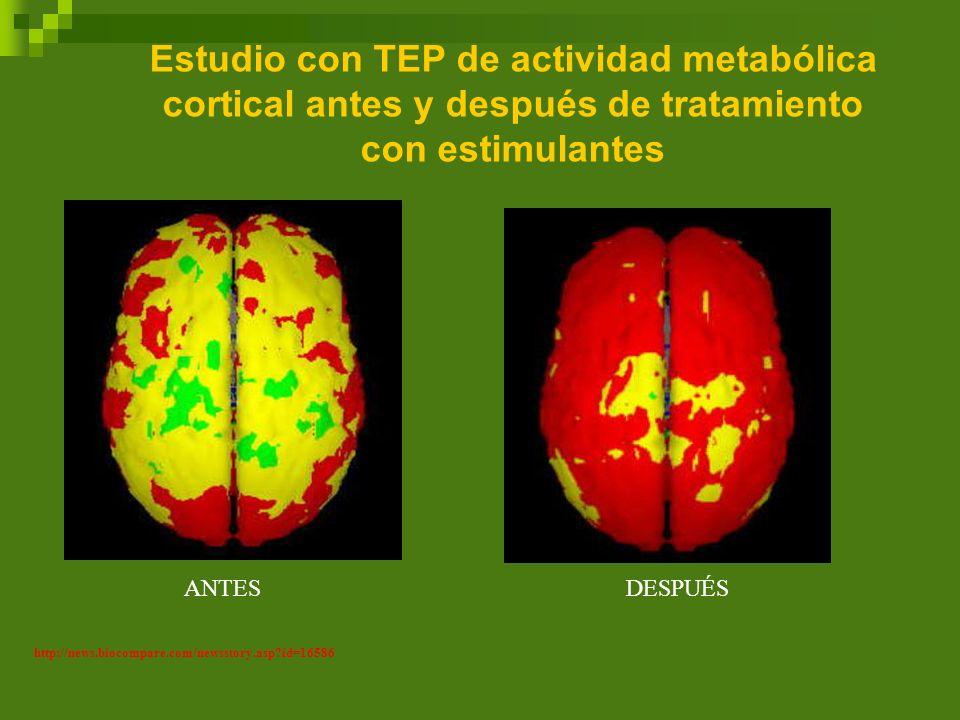 Estudio con TEP de actividad metabólica cortical antes y después de tratamiento con estimulantes