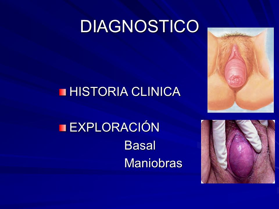 DIAGNOSTICO HISTORIA CLINICA EXPLORACIÓN Basal Maniobras