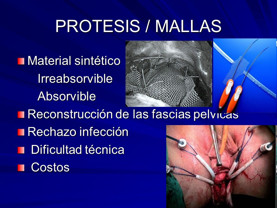 PROTESIS / MALLAS Material sintético Irreabsorvible Absorvible