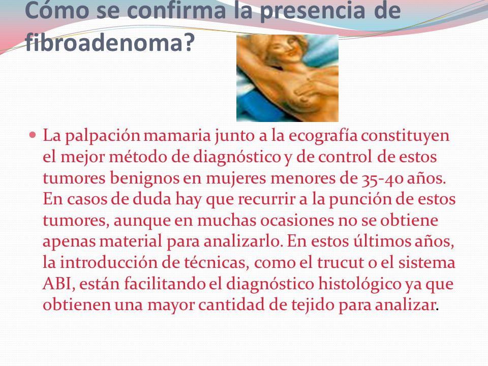 Cómo se confirma la presencia de fibroadenoma