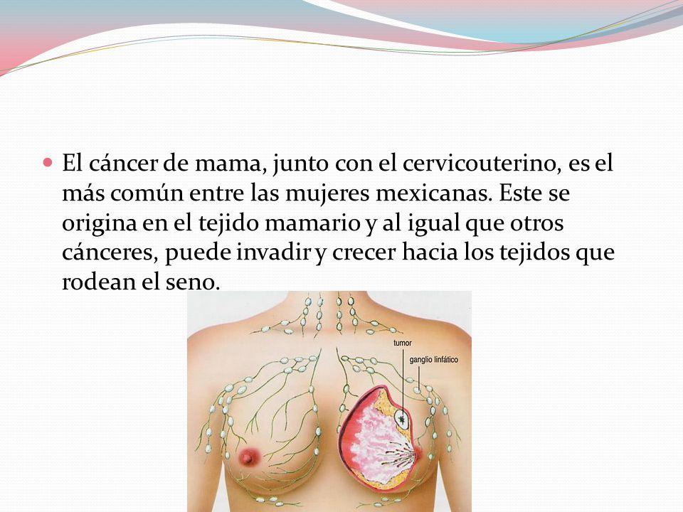 El cáncer de mama, junto con el cervicouterino, es el más común entre las mujeres mexicanas.
