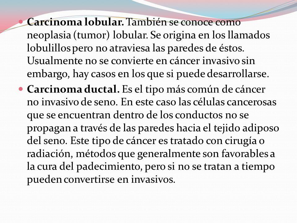 Carcinoma lobular. También se conoce como neoplasia (tumor) lobular