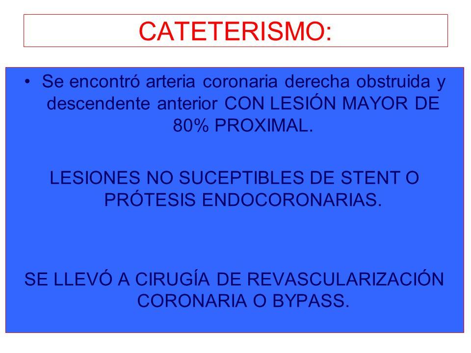 CATETERISMO: Se encontró arteria coronaria derecha obstruida y descendente anterior CON LESIÓN MAYOR DE 80% PROXIMAL.