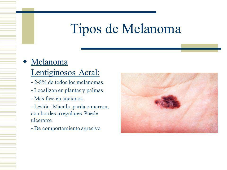 Tipos de Melanoma Melanoma Lentiginosos Acral: