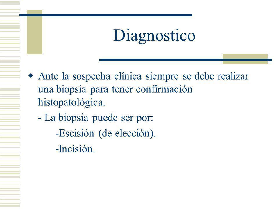 Diagnostico Ante la sospecha clínica siempre se debe realizar una biopsia para tener confirmación histopatológica.