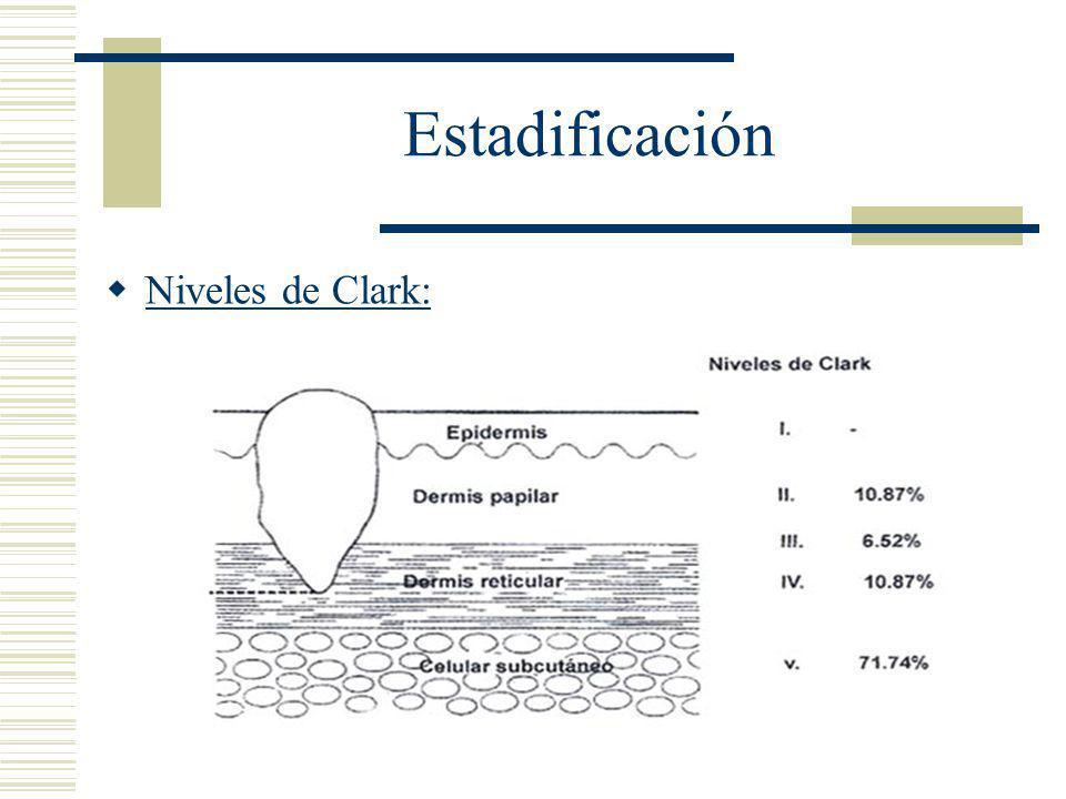 Estadificación Niveles de Clark: