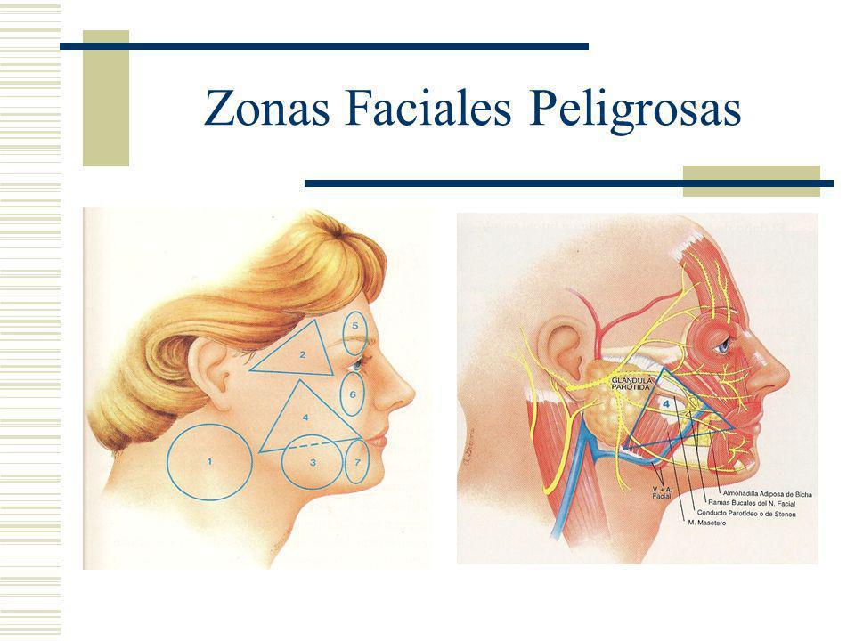Zonas Faciales Peligrosas