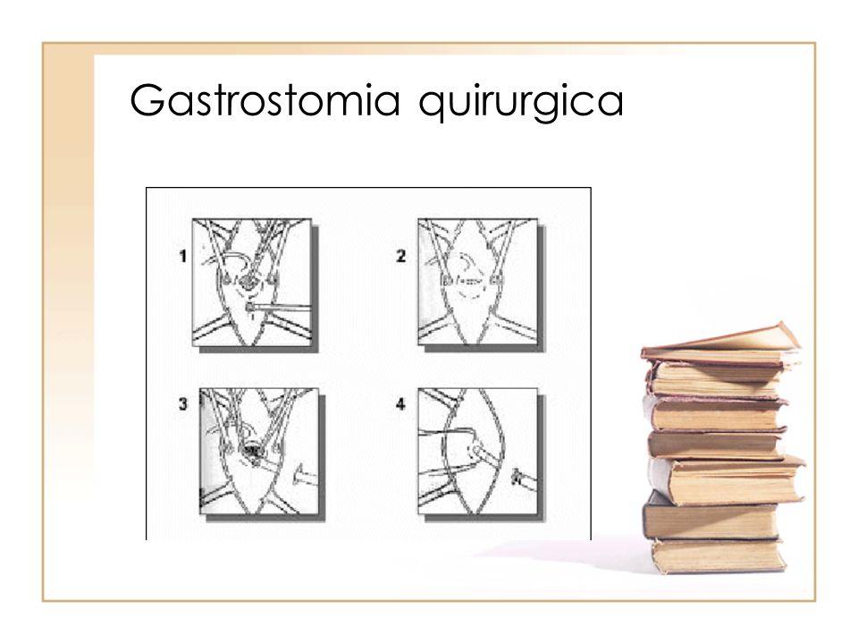 Gastrostomia quirurgica