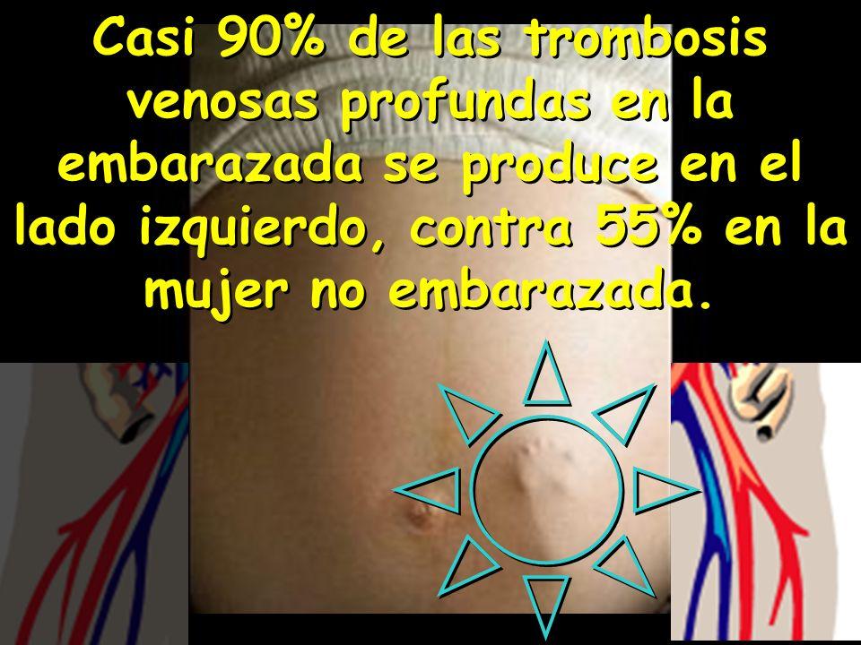 Casi 90% de las trombosis venosas profundas en la embarazada se produce en el lado izquierdo, contra 55% en la mujer no embarazada.
