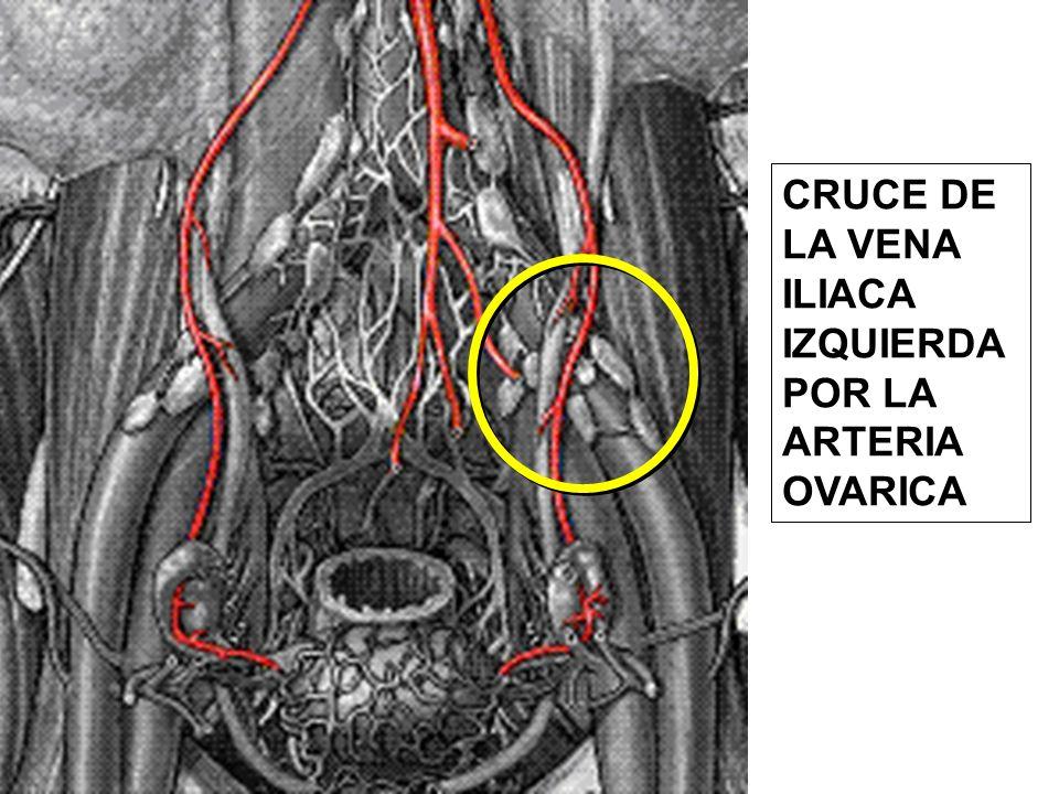 CRUCE DE LA VENA ILIACA IZQUIERDA POR LA ARTERIA OVARICA