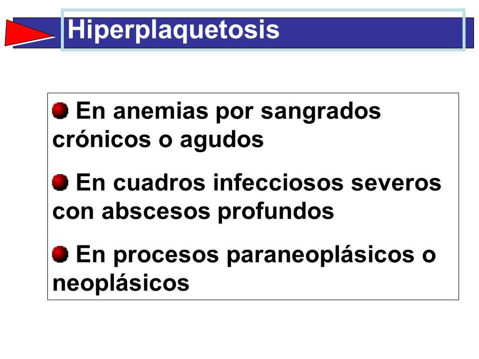 Hiperplaquetosis En anemias por sangrados crónicos o agudos