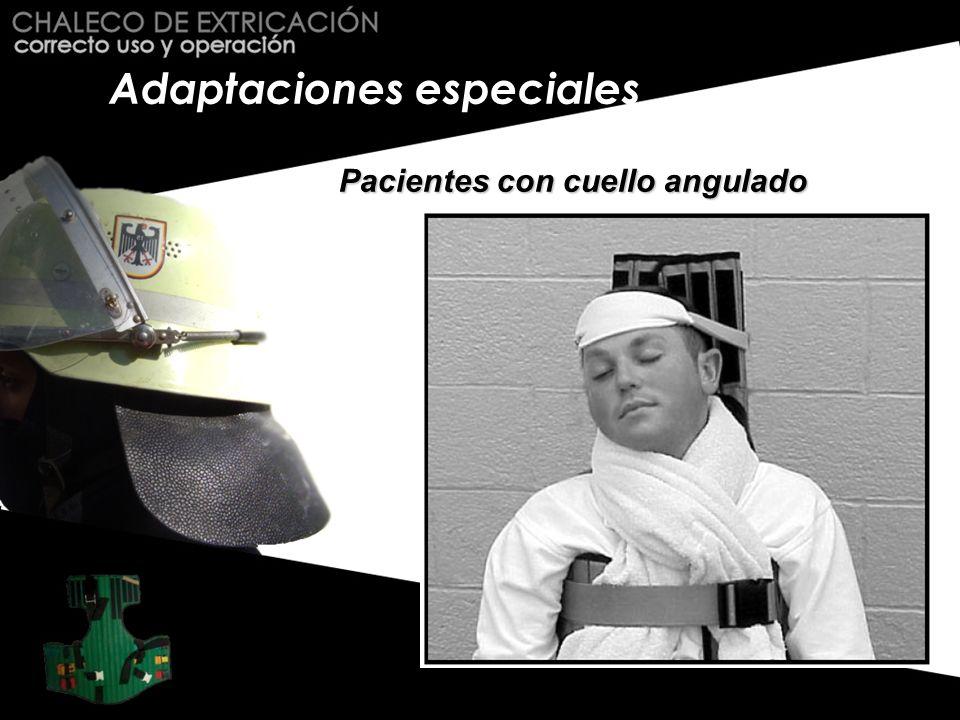 Adaptaciones especiales
