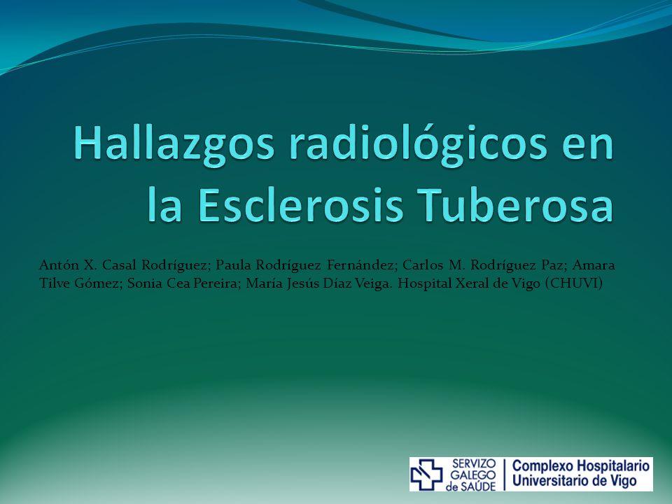 Hallazgos radiológicos en la Esclerosis Tuberosa
