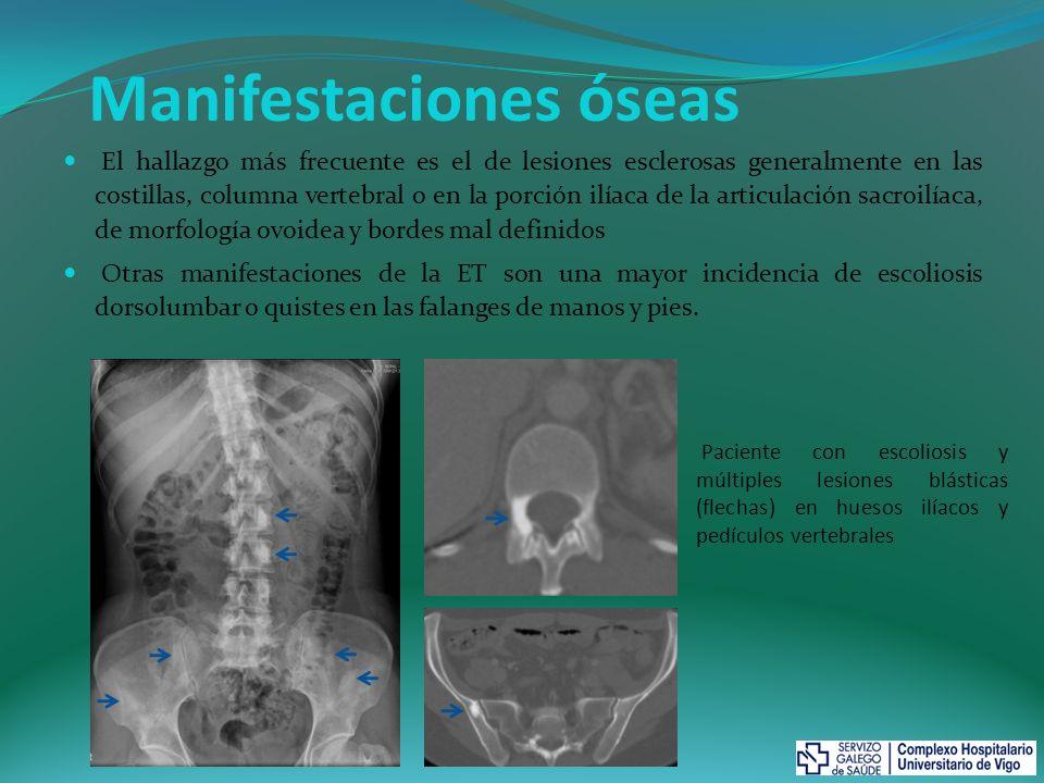 Manifestaciones óseas