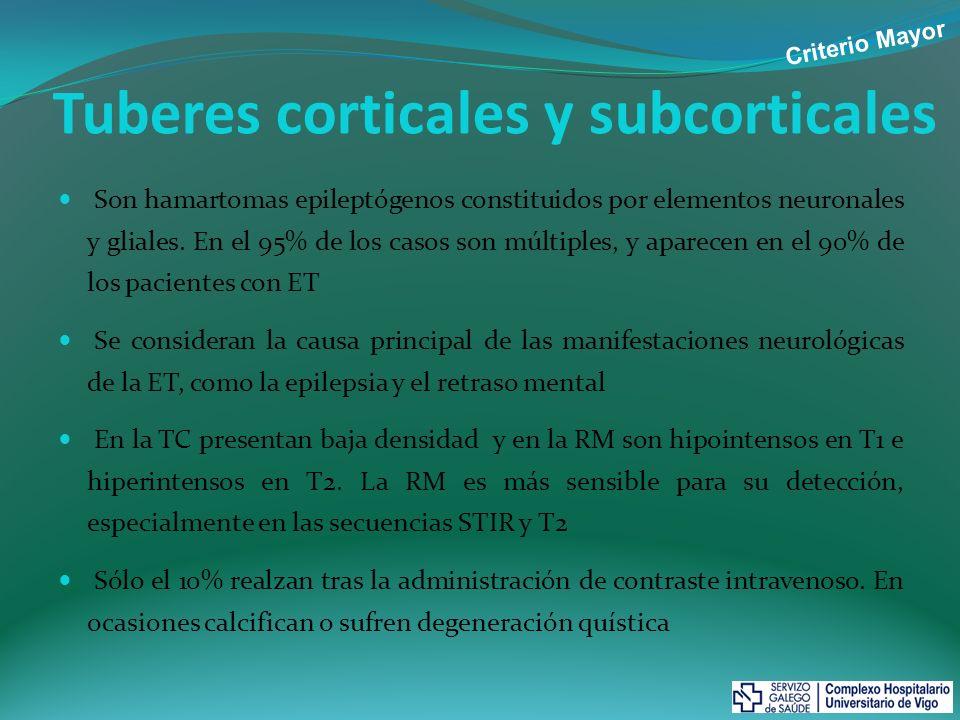 Tuberes corticales y subcorticales
