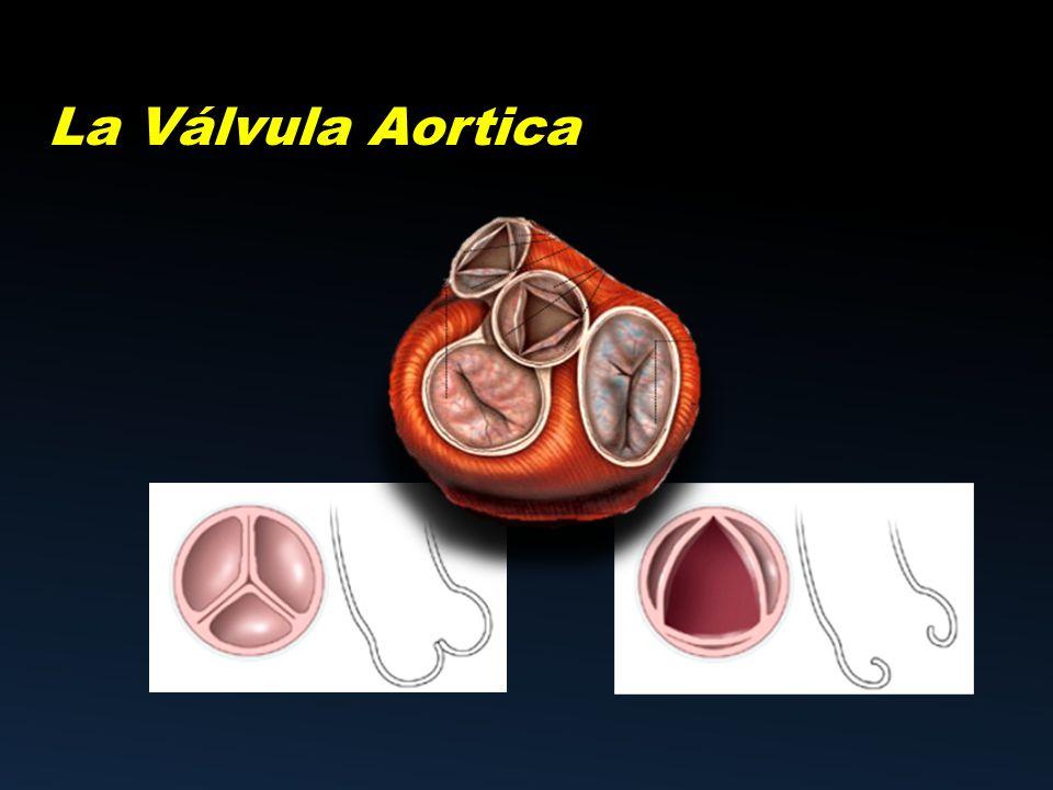 La Válvula Aortica. - ppt video online descargar