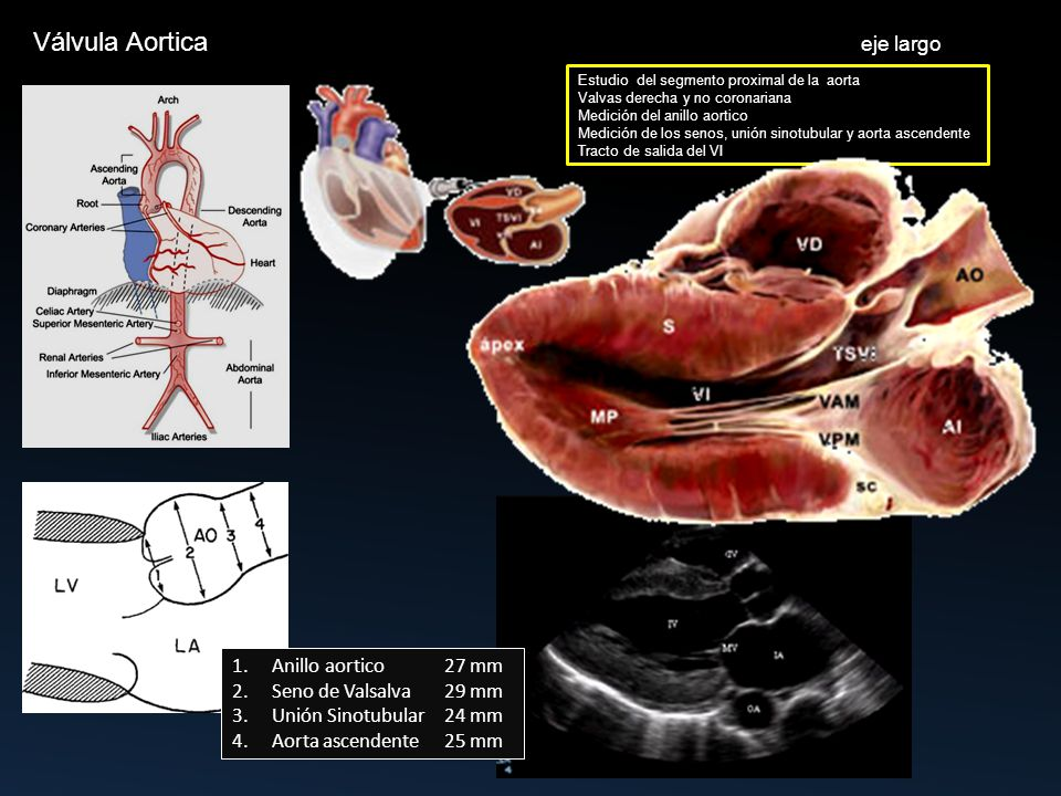 Encantador Anatomía De La Válvula Aórtica Componente - Imágenes de ...