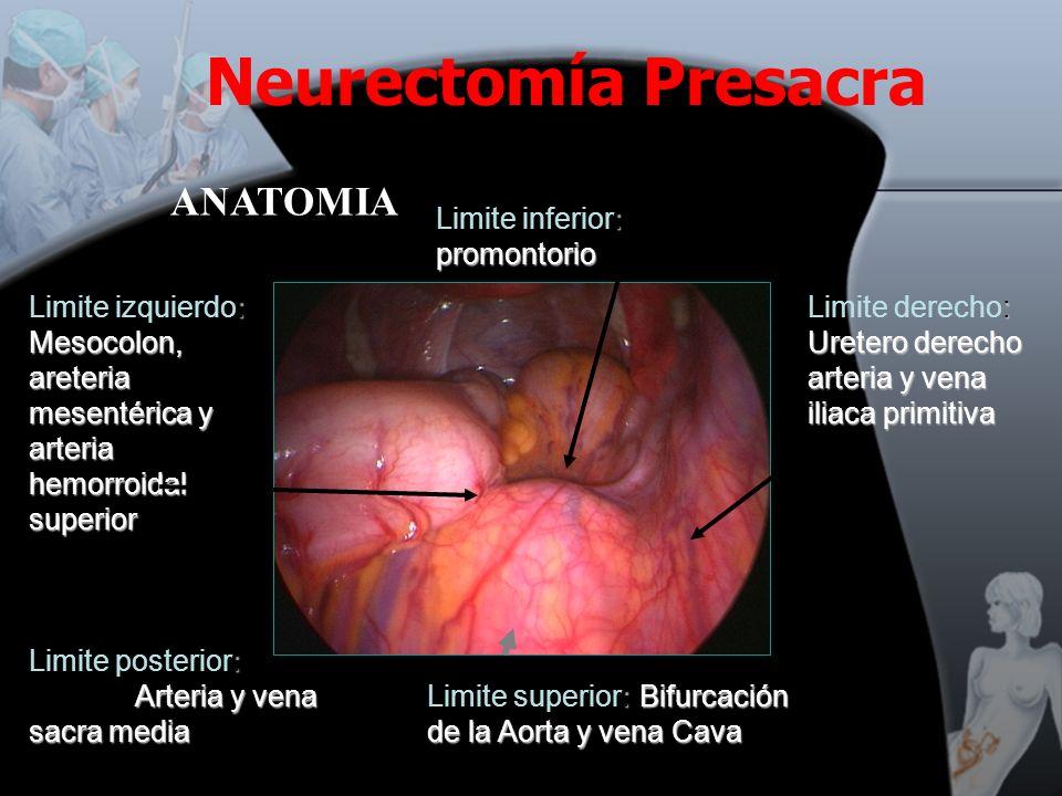 Neurectomía Presacra ANATOMIA Limite inferior: promontorio