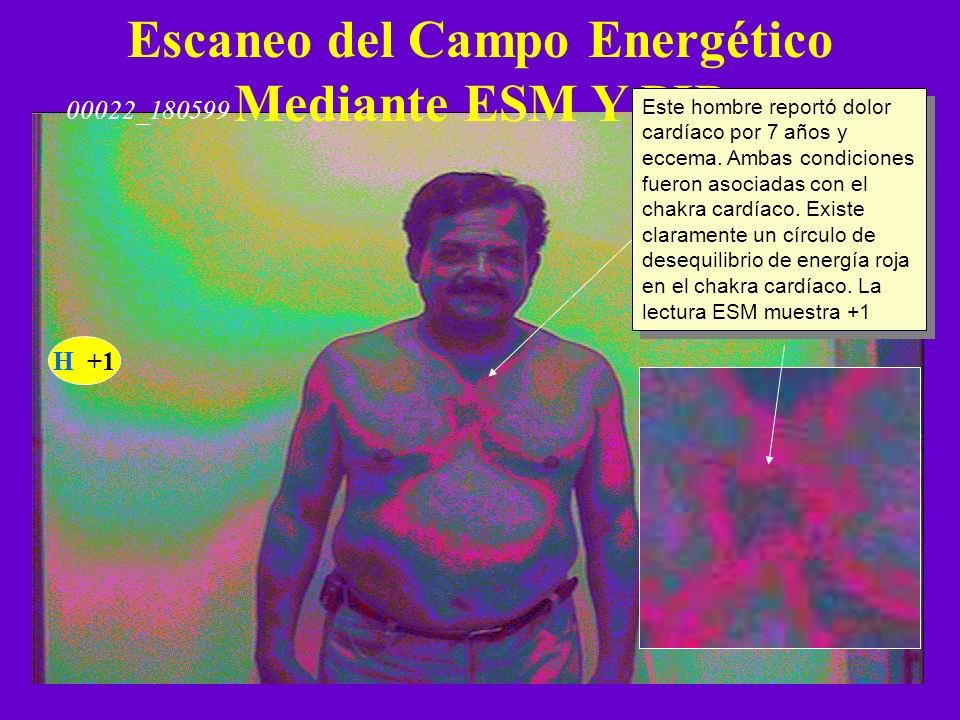 Escaneo del Campo Energético Mediante ESM Y PIP