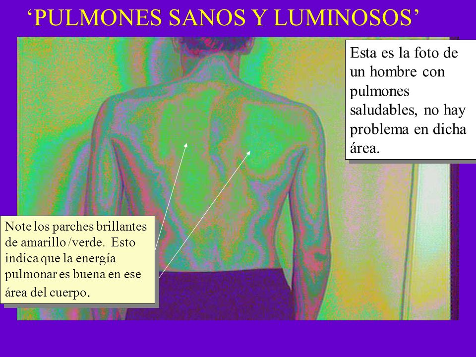 'PULMONES SANOS Y LUMINOSOS'