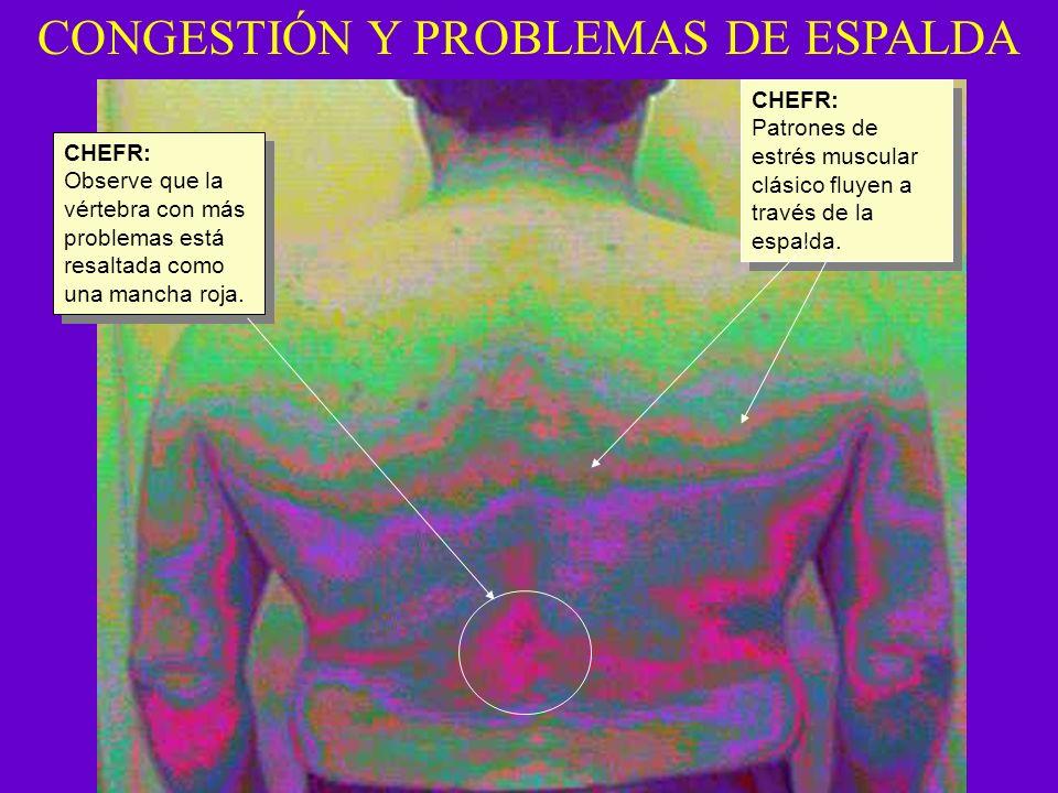 CONGESTIÓN Y PROBLEMAS DE ESPALDA