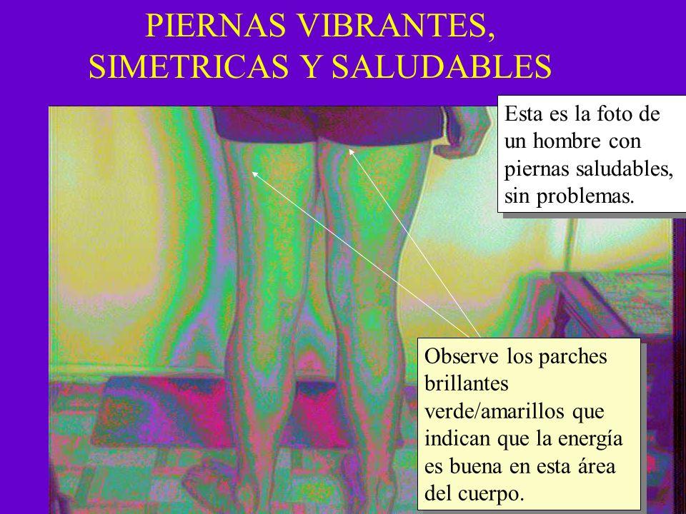 PIERNAS VIBRANTES, SIMETRICAS Y SALUDABLES