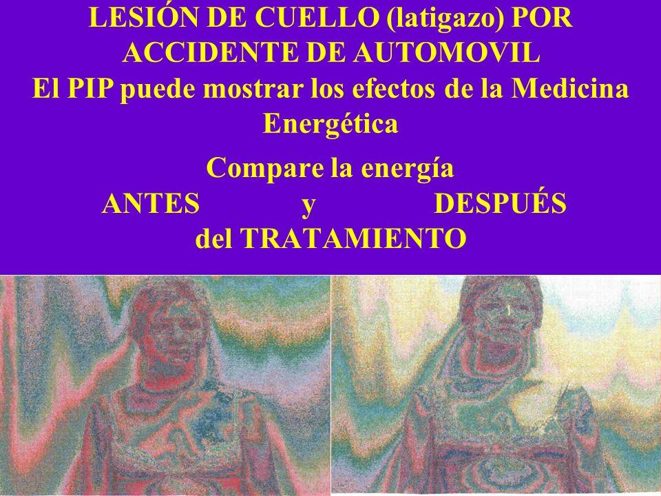 Compare la energía ANTES y DESPUÉS del TRATAMIENTO