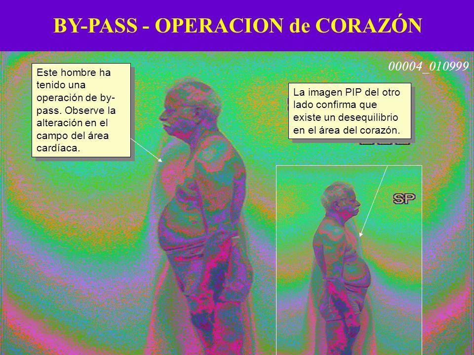 BY-PASS - OPERACION de CORAZÓN