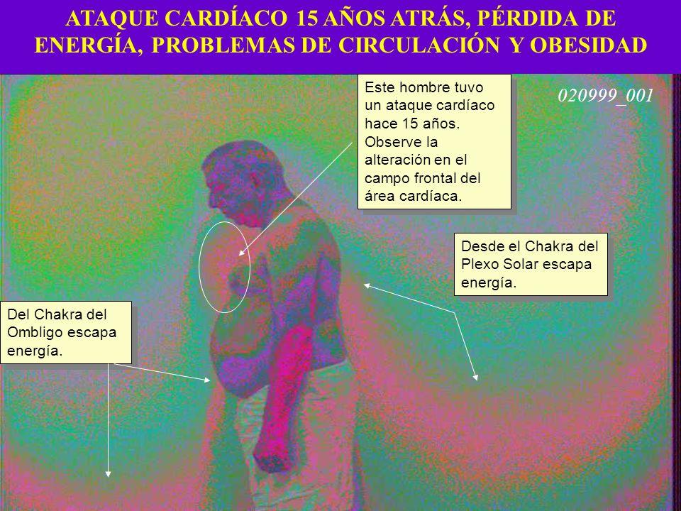 ATAQUE CARDÍACO 15 AÑOS ATRÁS, PÉRDIDA DE ENERGÍA, PROBLEMAS DE CIRCULACIÓN Y OBESIDAD