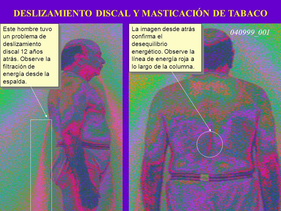 DESLIZAMIENTO DISCAL Y MASTICACIÓN DE TABACO