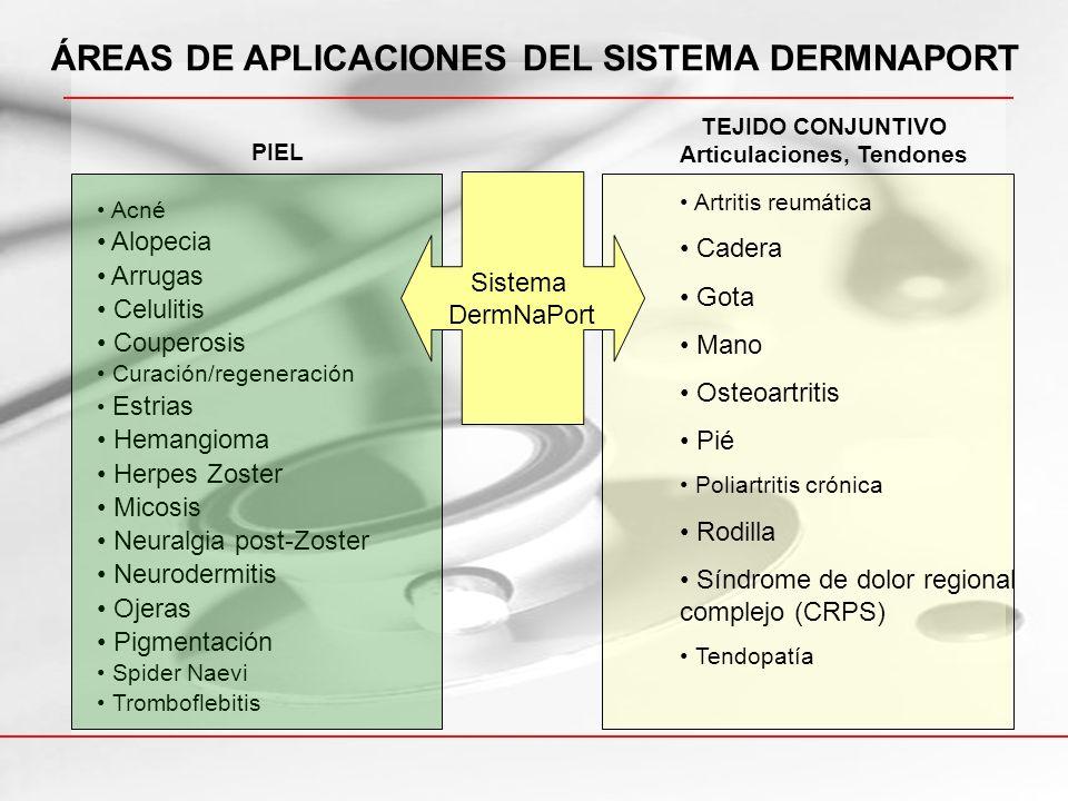 ÁREAS DE APLICACIONES DEL SISTEMA DERMNAPORT Articulaciones, Tendones