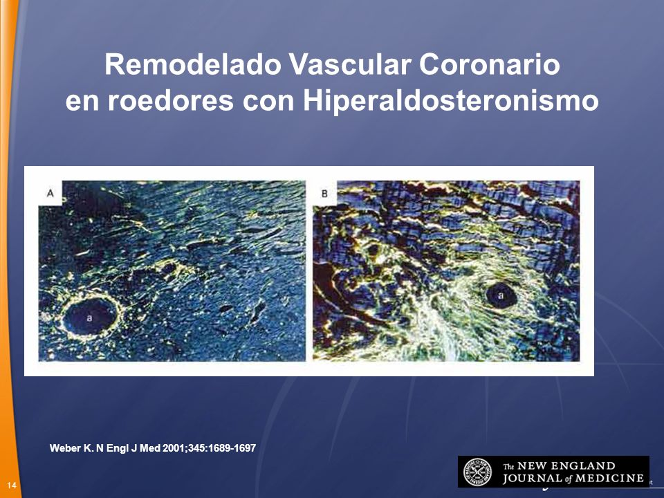 Remodelado Vascular Coronario en roedores con Hiperaldosteronismo