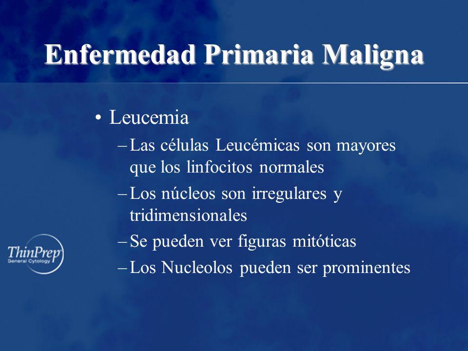 Enfermedad Primaria Maligna