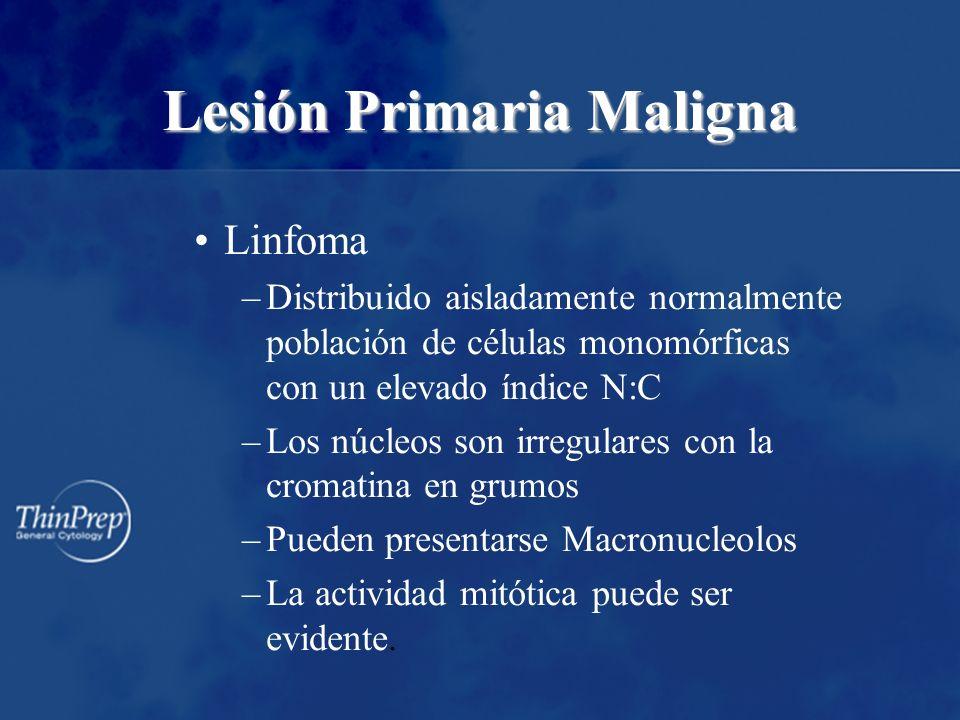 Lesión Primaria Maligna