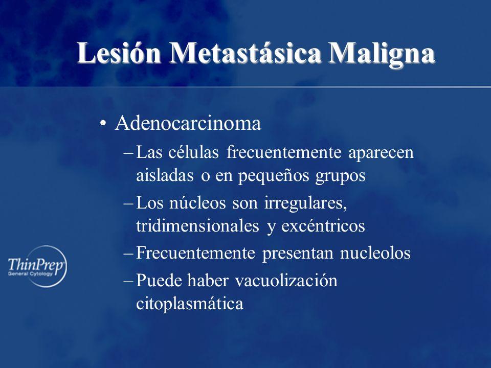 Lesión Metastásica Maligna