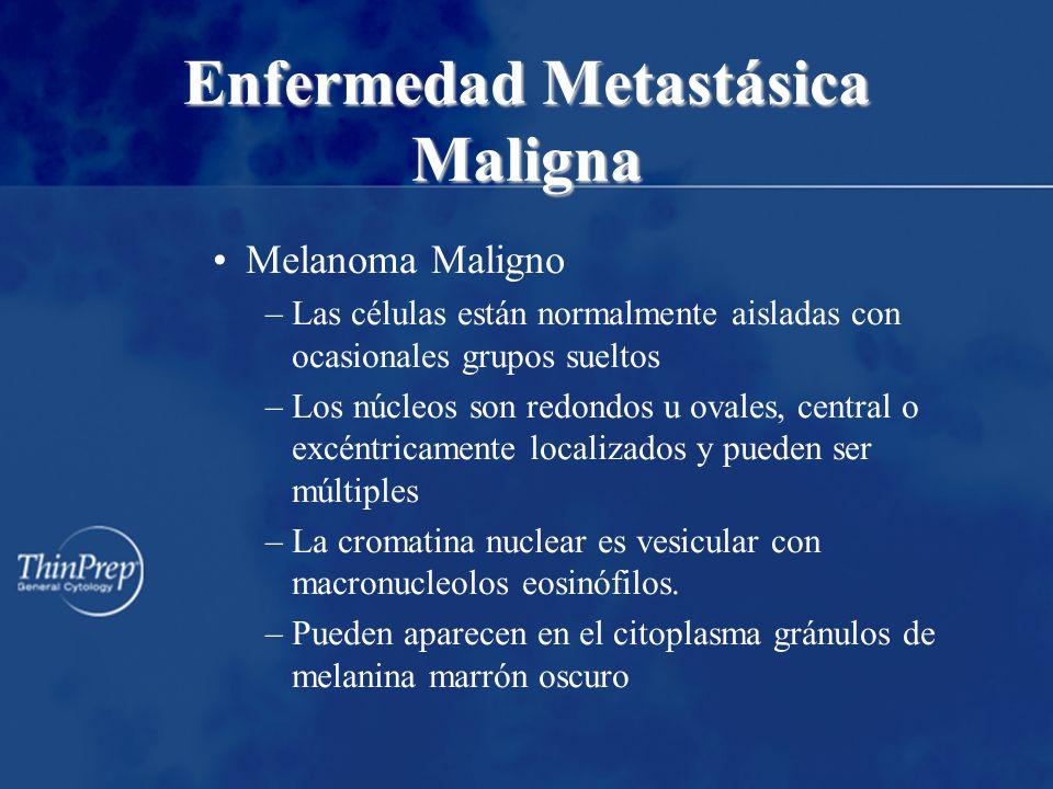 Enfermedad Metastásica Maligna