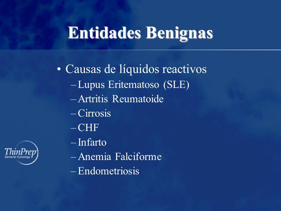Entidades Benignas Causas de líquidos reactivos